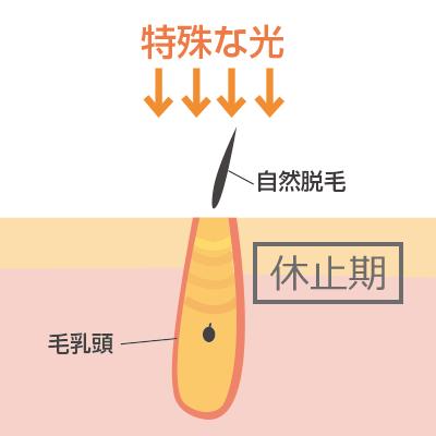 ハイパースキン法イメージ画像